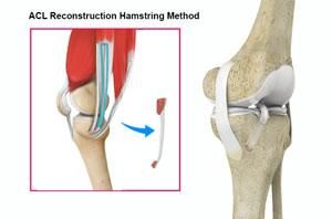 ACL Reconstruction of Hamstring Tendon