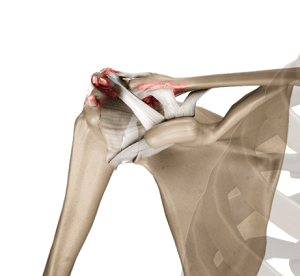 Acromioclavicular Joint (AC) Joint Reconstruction